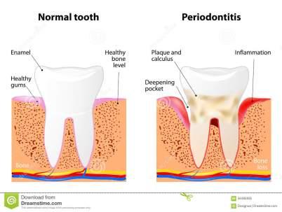 periodontitis-56485935
